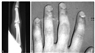 Growth Plate Stress Fractures in Teenage Climbers